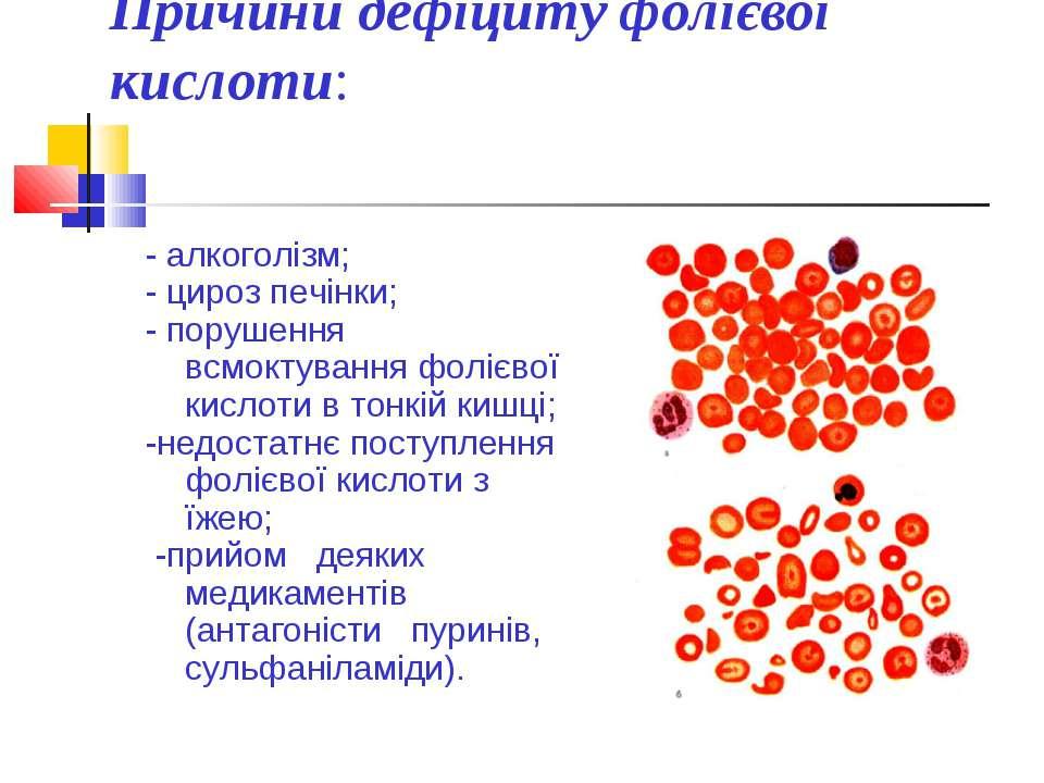 Причини дефіциту фолієвої кислоти: - алкоголізм; - цироз печінки; - порушення...