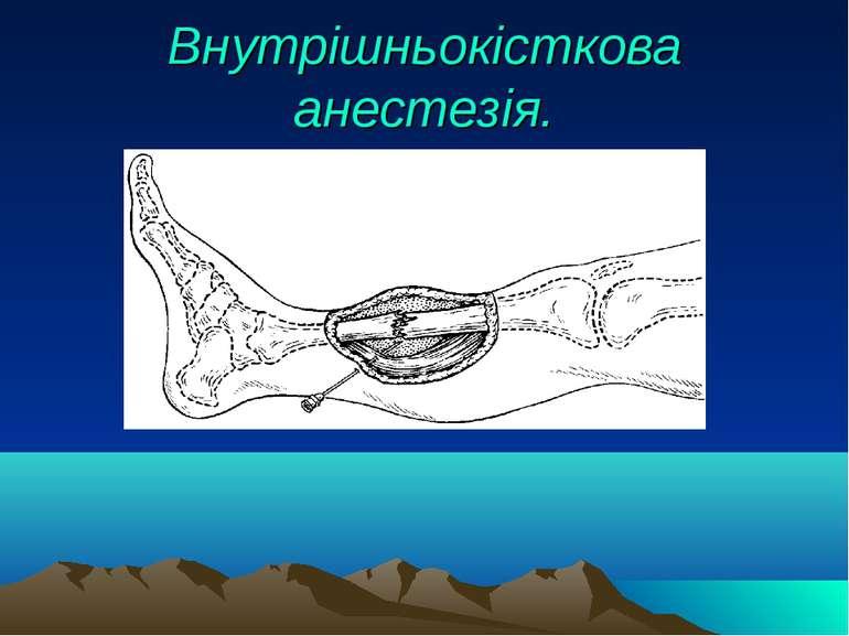 Внутрішньокісткова анестезія.