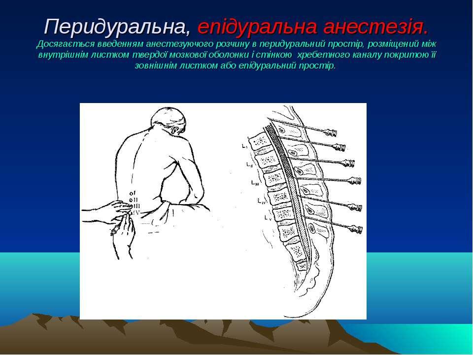Перидуральна, епідуральна анестезія. Досягається введенням анестезуючого розч...