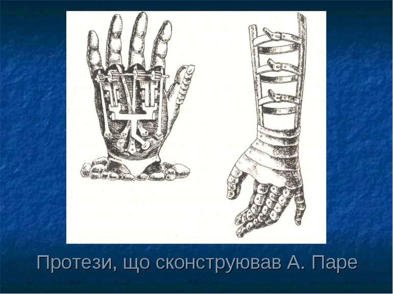 Протези, що сконструював А. Паре