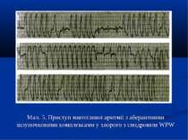 Мал. 5. Приступ миготливої аритмії з аберантними шлуночковими комплексами у х...