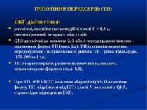 ТРІПОТІННЯ ПЕРЕДСЕРДЬ (TП) ЕКГ-діагностика: ритмічні, постійні пилкоподібні х...