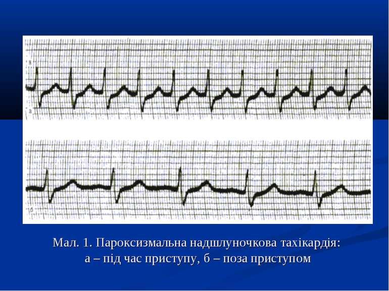 Мал. 1. Пароксизмальна надшлуночкова тахікардія: а – під час приступу, б – по...