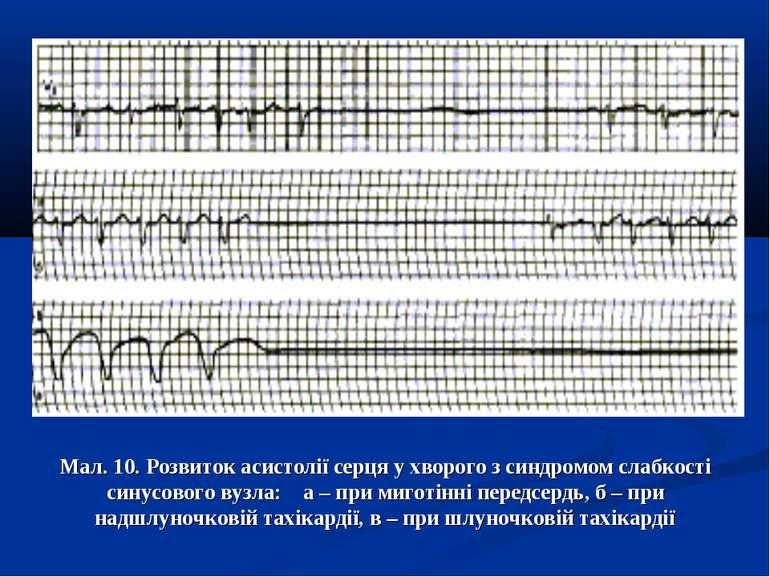 Мал. 10. Розвиток асистолії серця у хворого з синдромом слабкості синусового ...