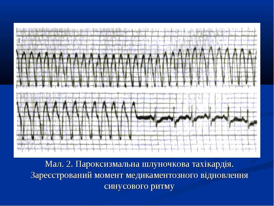 Мал. 2. Пароксизмальна шлуночкова тахікардія. Зареєстрований момент медикамен...