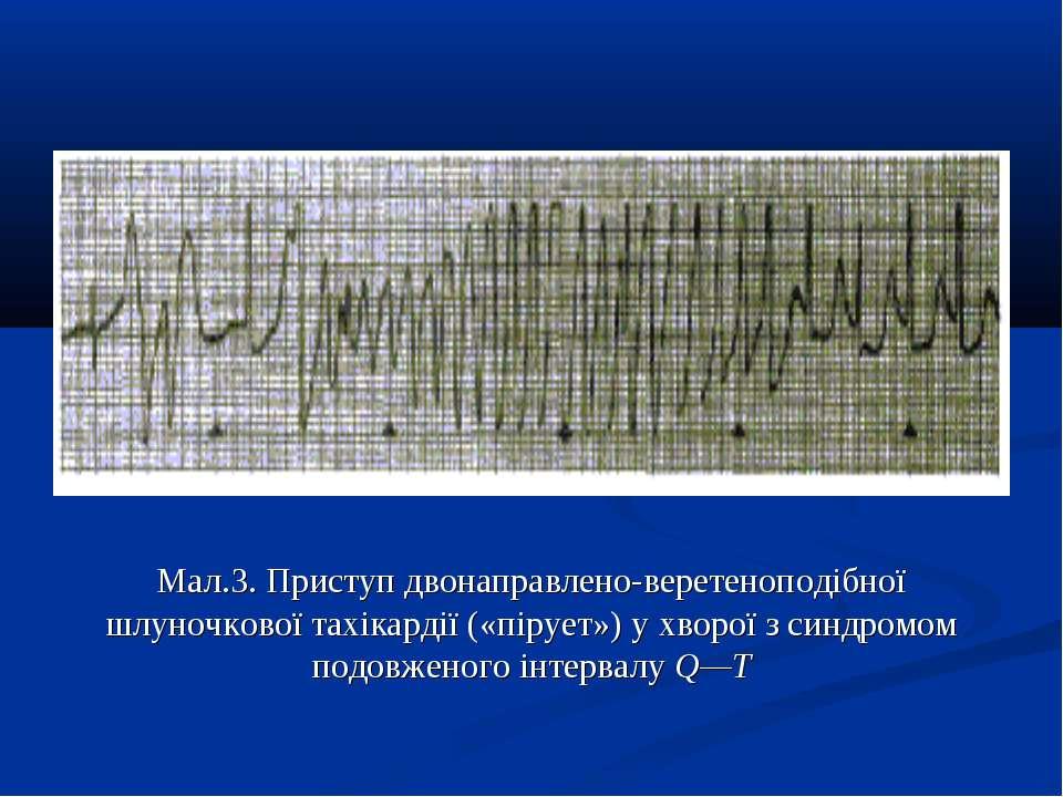 Мал.3. Приступ двонаправлено-веретеноподібної шлуночкової тахікардії («пірует...