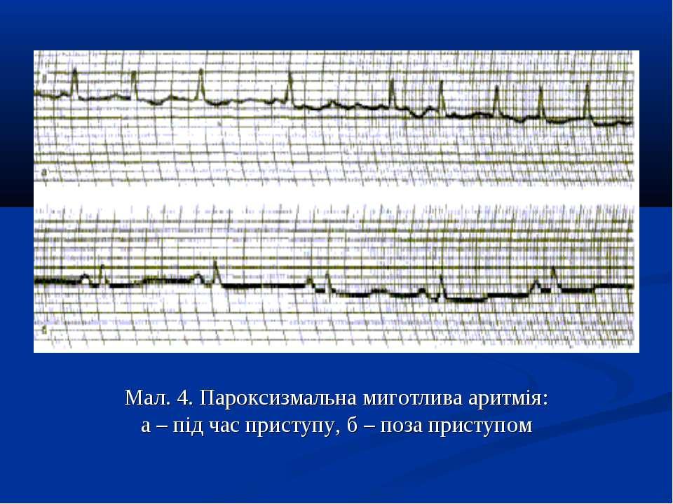 Мал. 4. Пароксизмальна миготлива аритмія: а – під час приступу, б – поза прис...