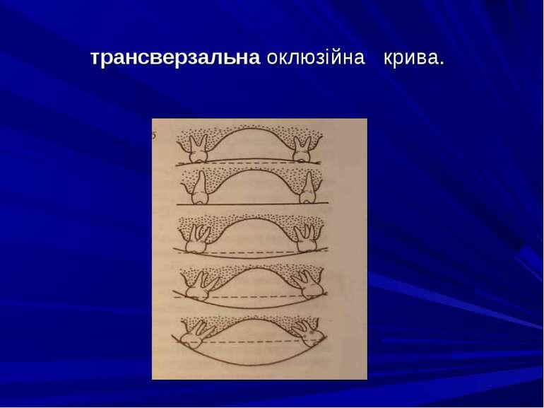 трансверзальна оклюзійна крива.