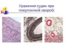 Ураження судин при гіпертонічній хворобі
