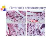 Гістогенез атеросклерозу