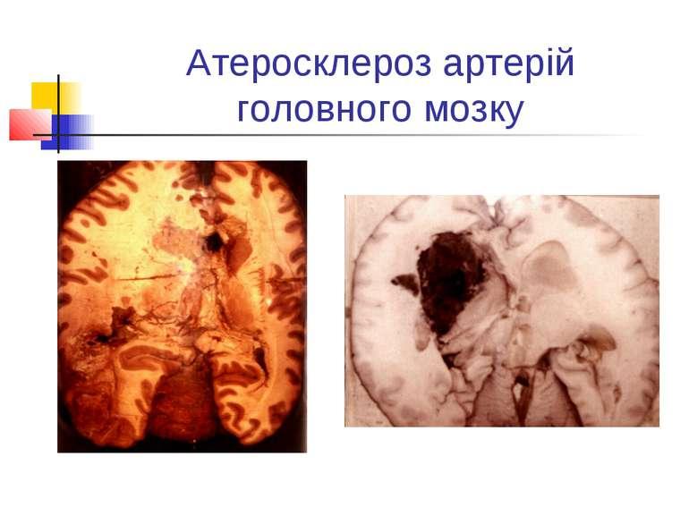 Атеросклероз артерій головного мозку