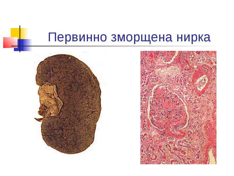 Первинно зморщена нирка