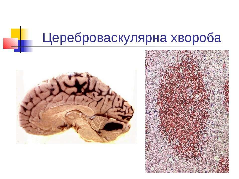 Цереброваскулярна хвороба