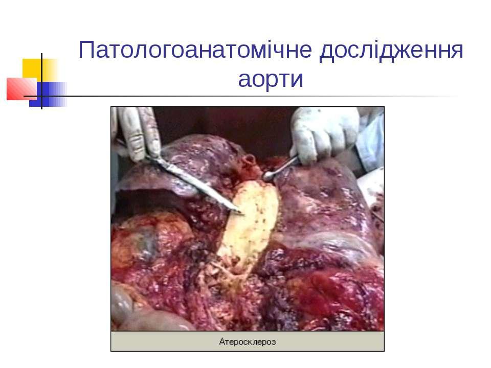 Патологоанатомічне дослідження аорти
