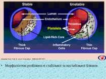 Морфологiчнi розбiжностi стабiльної та нестабiльної бляшок