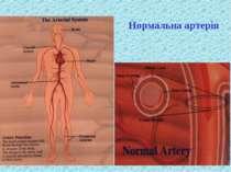 Нормальна артерія