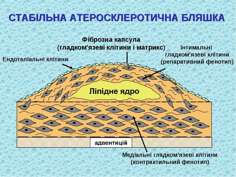 СТАБІЛЬНА АТЕРОСКЛЕРОТИЧНА БЛЯШКА Фіброзна капсула (гладком'язеві клітини і м...
