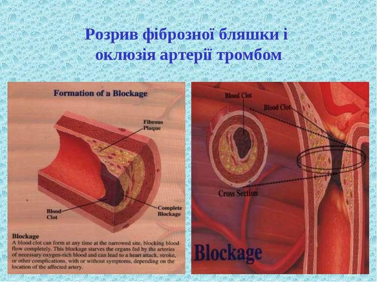 Розрив фіброзної бляшки і оклюзія артерії тромбом