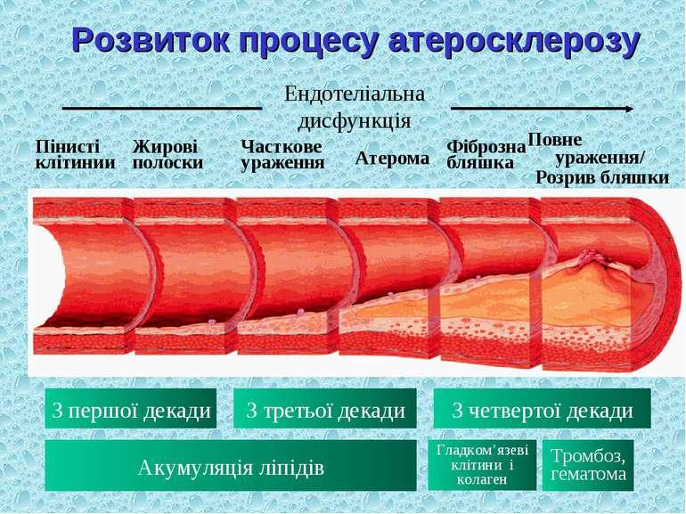 Розвиток процесу атеросклерозу Ендотеліальна дисфункція Пінисті клітинии Жиро...
