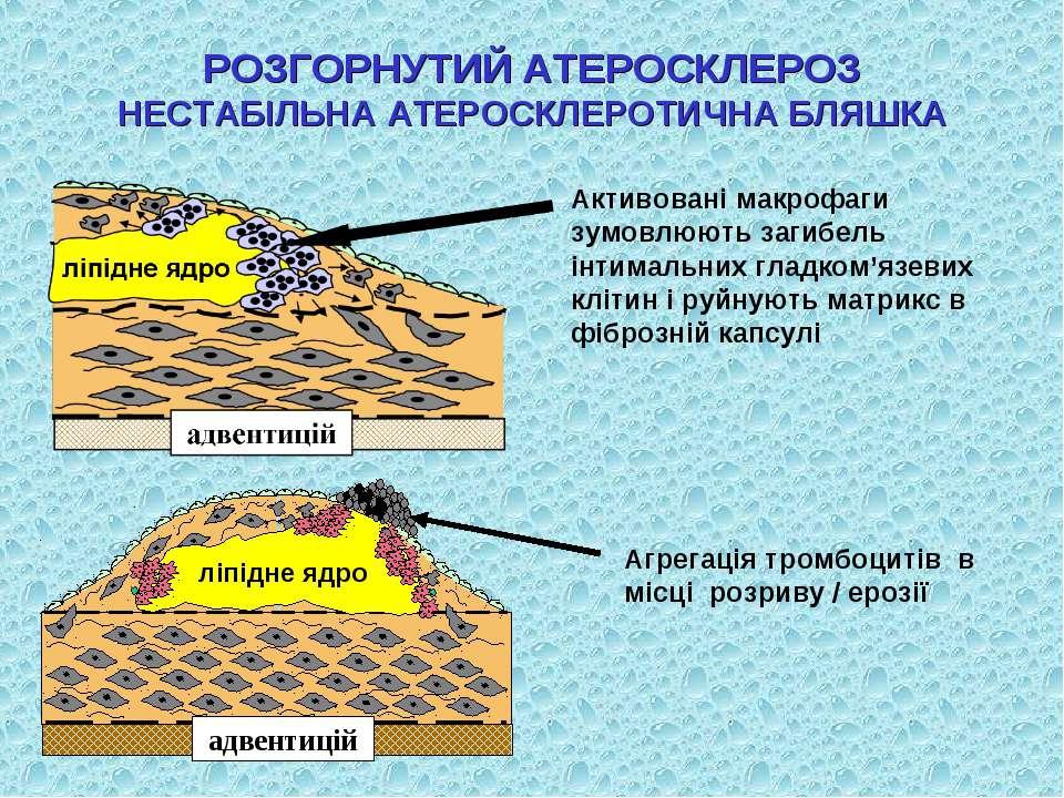 Активовані макрофаги зумовлюють загибель інтимальних гладком'язевих клітин і ...