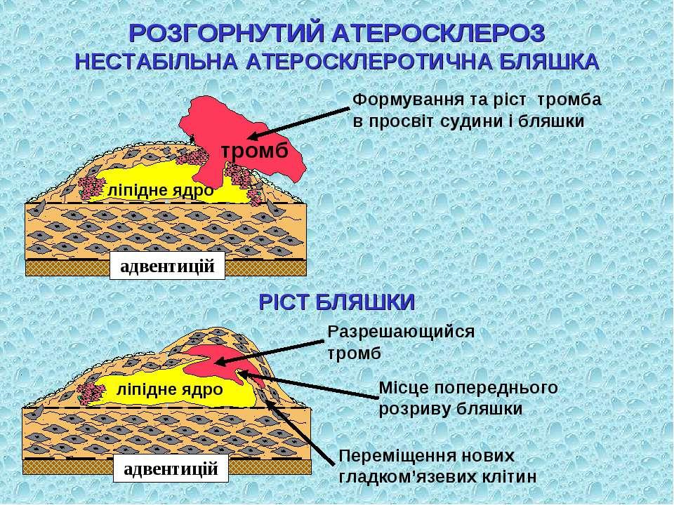 Формування та ріст тромба в просвіт судини і бляшки РІСТ БЛЯШКИ Місце поперед...