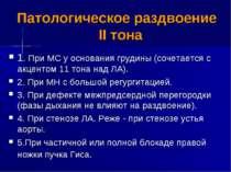 Патологическое раздвоение II тона 1. При МС у основания грудины (сочетается с...