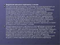 Виділення вільного кортизолу з сечею Усе частіше при діагностиці синдрому Куш...