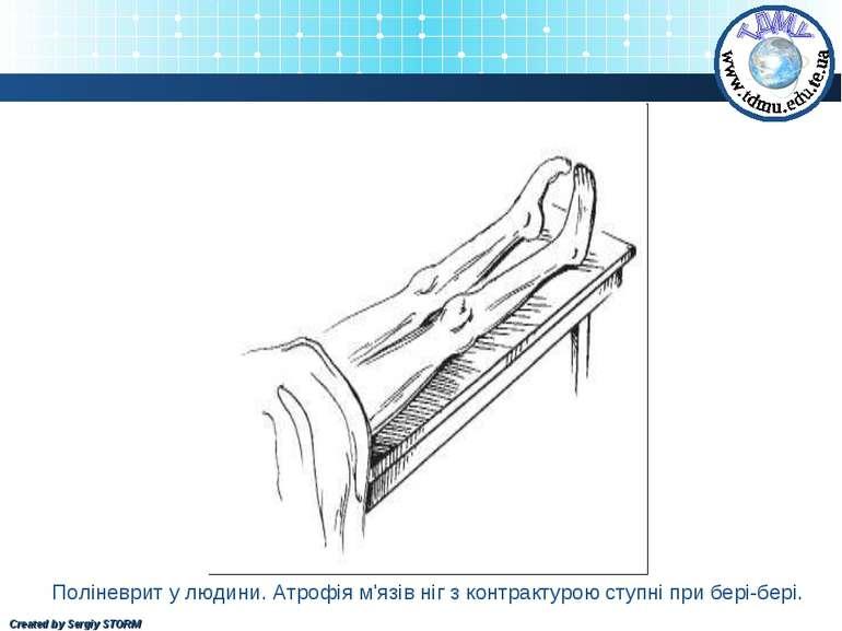 Поліневрит у людини. Атрофія м'язів ніг з контрактурою ступні при бері-бері. ...