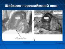 Shouldering Ischemia Anterior Posterior Шийково-перешийковий шов Internationa...