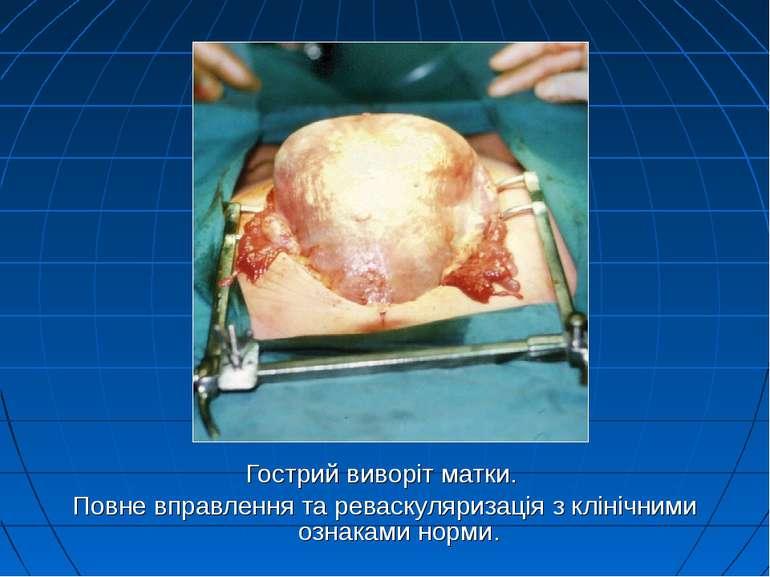 Гострий виворіт матки. Повне вправлення та реваскуляризація з клінічними озна...
