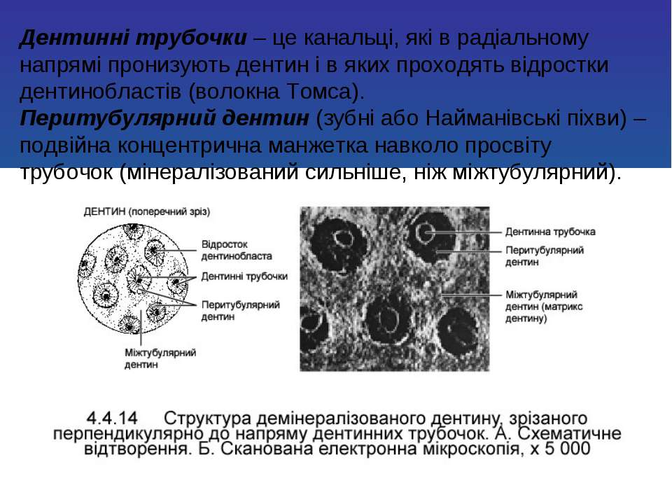 Дентинні трубочки – це канальці, які в радіальному напрямі пронизують дентин ...