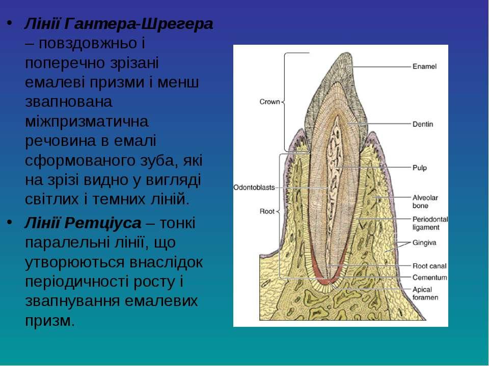 Лінії Гантера-Шрегера – повздовжньо і поперечно зрізані емалеві призми і менш...