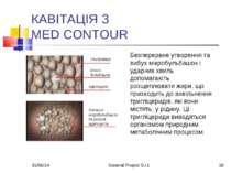 * General Project S.r.l. * КАВІТАЦІЯ З MED CONTOUR Безперервне утворення та в...