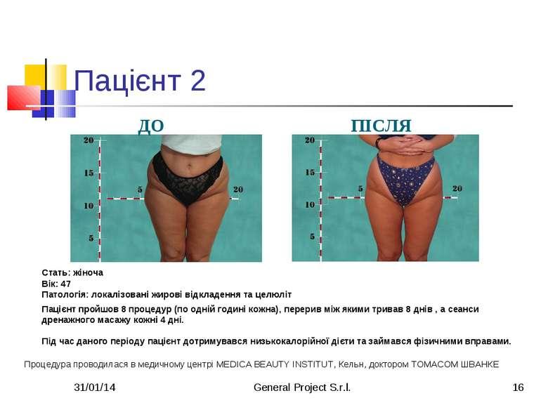* General Project S.r.l. * Пацієнт 2 Стать: жіноча Вік: 47 Патологія: локаліз...