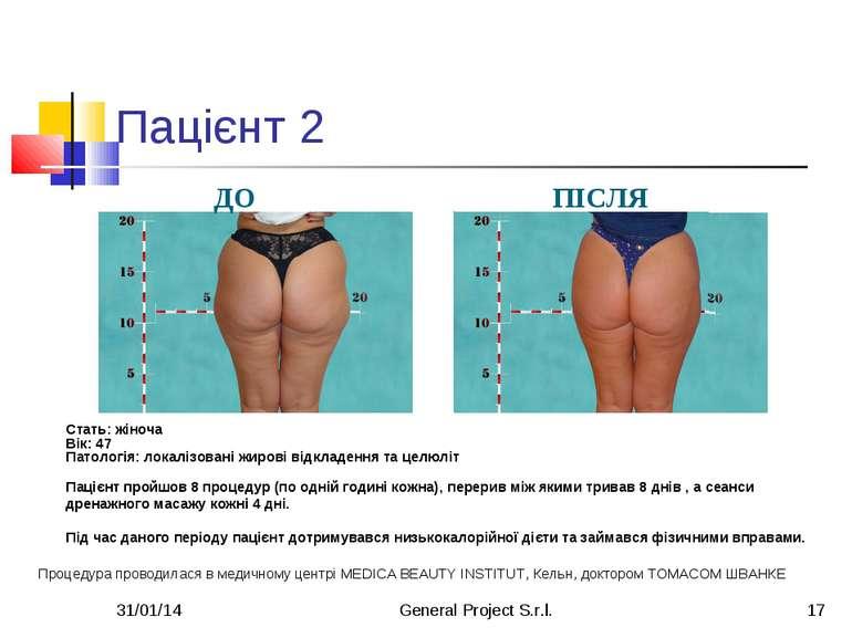 * General Project S.r.l. * Пацієнт 2 ДО ПІСЛЯ Стать: жіноча Вік: 47 Патологія...