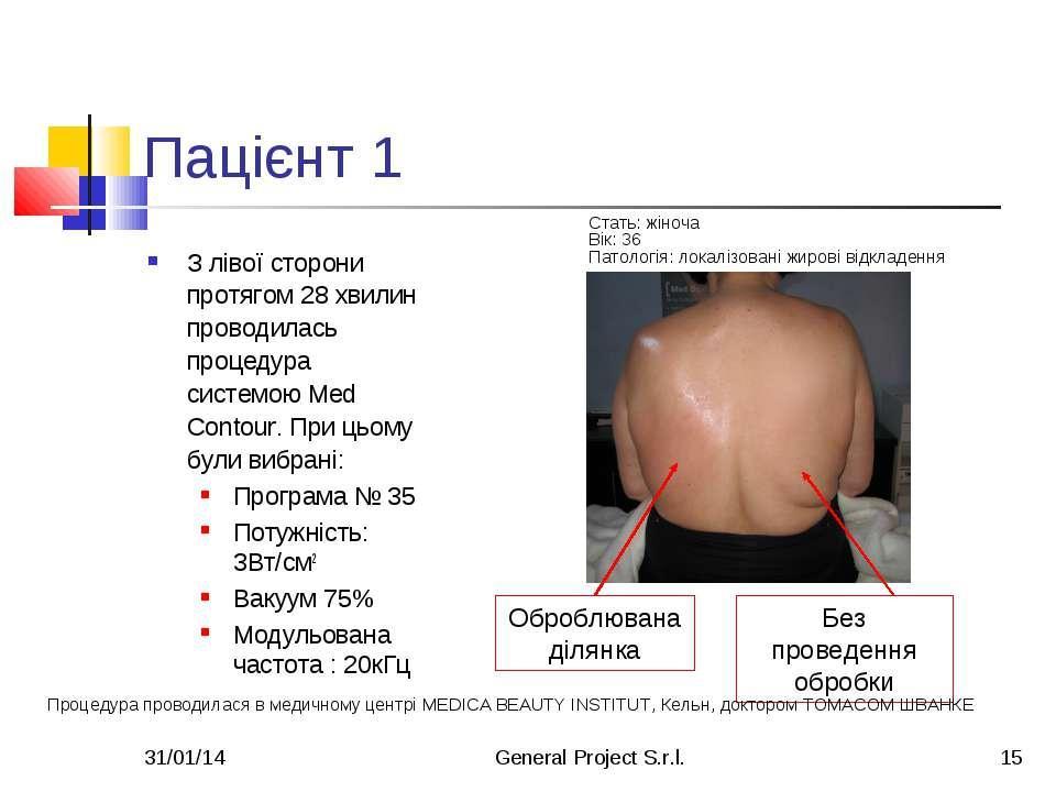 * General Project S.r.l. * Пацієнт 1 З лівої сторони протягом 28 хвилин прово...