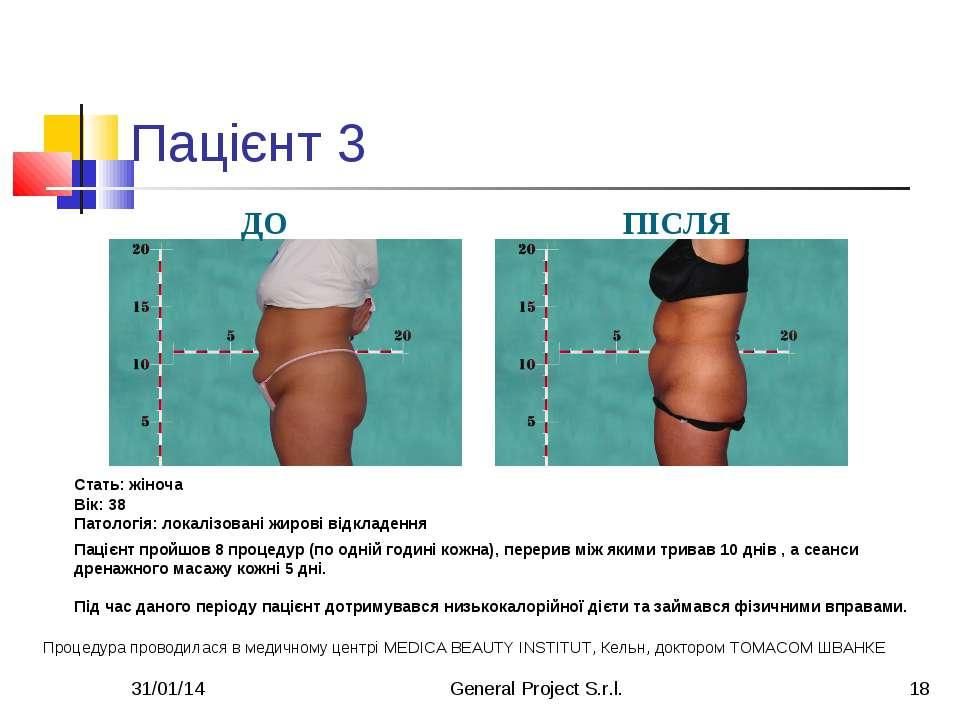 * General Project S.r.l. * Пацієнт 3 ДО ПІСЛЯ Стать: жіноча Вік: 38 Патологія...