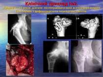 Клінічний приклад №2. Хворий К., 14 років, діагноз: післятравматичний асептич...