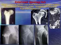 Клінічний приклад №3. Хвора К., 13 років, діагноз: стан після перенесеного ар...