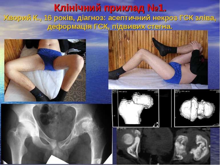 Клінічний приклад №1. Хворий К., 16 років, діагноз: асептичний некроз ГСК злі...