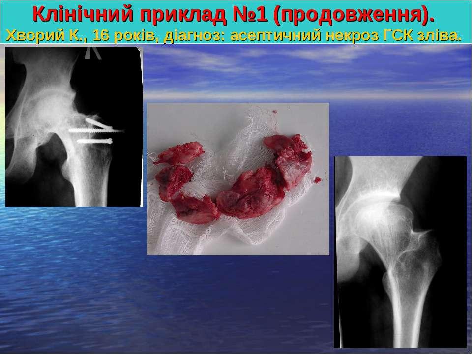 Клінічний приклад №1 (продовження). Хворий К., 16 років, діагноз: асептичний ...