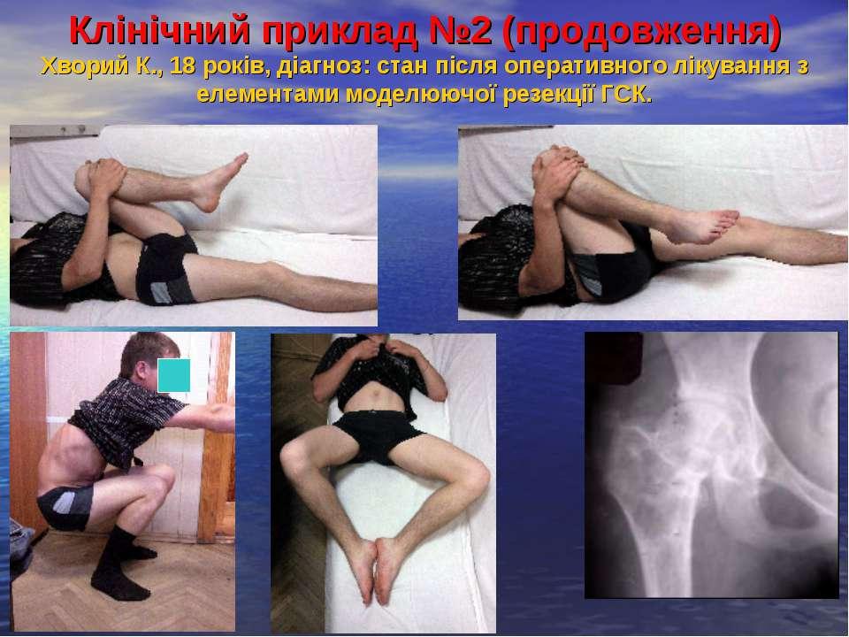 Клінічний приклад №2 (продовження) Хворий К., 18 років, діагноз: стан після о...