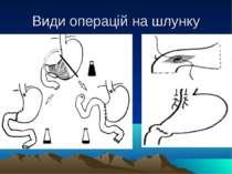 Види операцій на шлунку