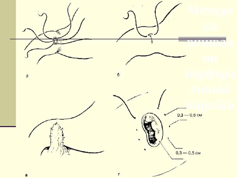 Методика вшивання перфоративної виразки