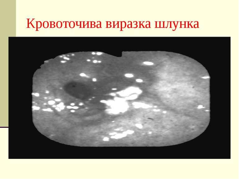 Кровоточива виразка шлунка