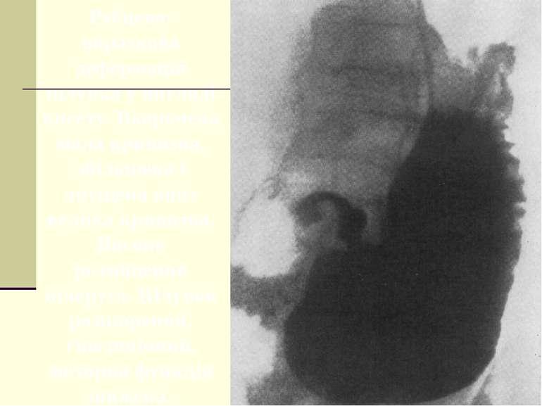 Рубцево-виразкова деформація шлунка у вигляді кисету. Вкорочена мала кривизна...