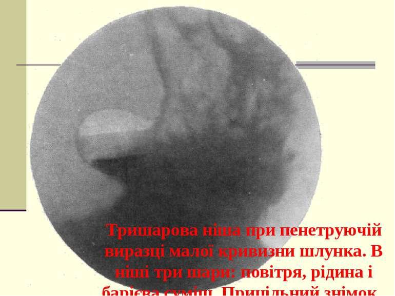 Тришарова ніша при пенетруючій виразці малої кривизни шлунка. В ніші три шари...