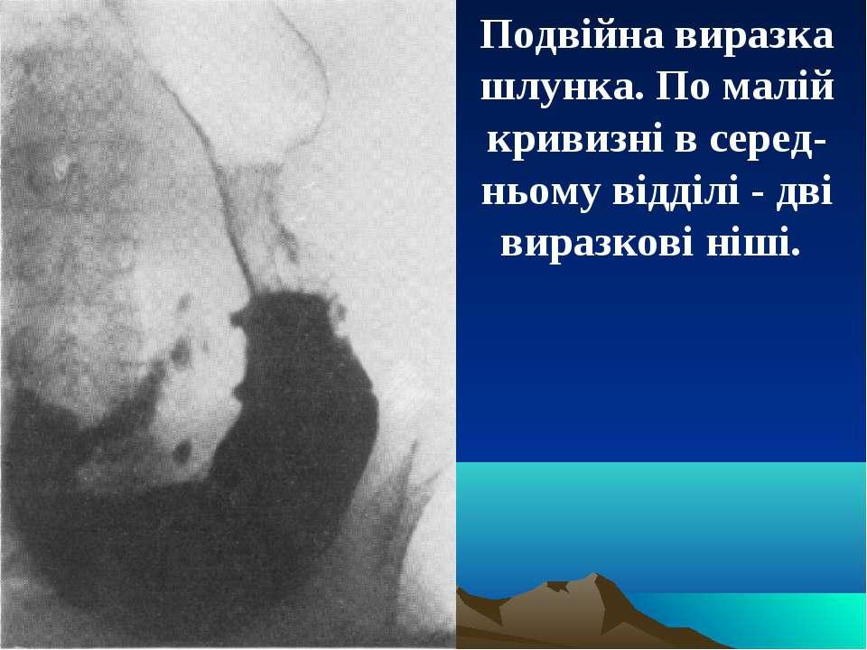 Подвійна виразка шлунка. По малій кривизні в серед-ньому відділі - дві виразк...