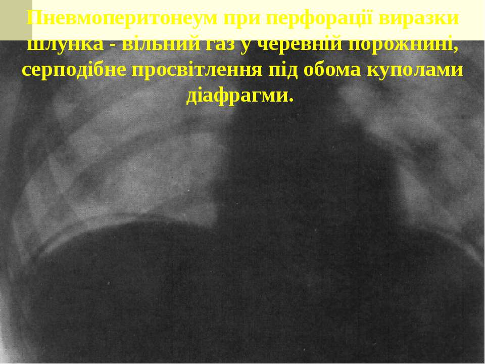 Пневмоперитонеум при перфорації виразки шлунка - вільний газ у черевній порож...