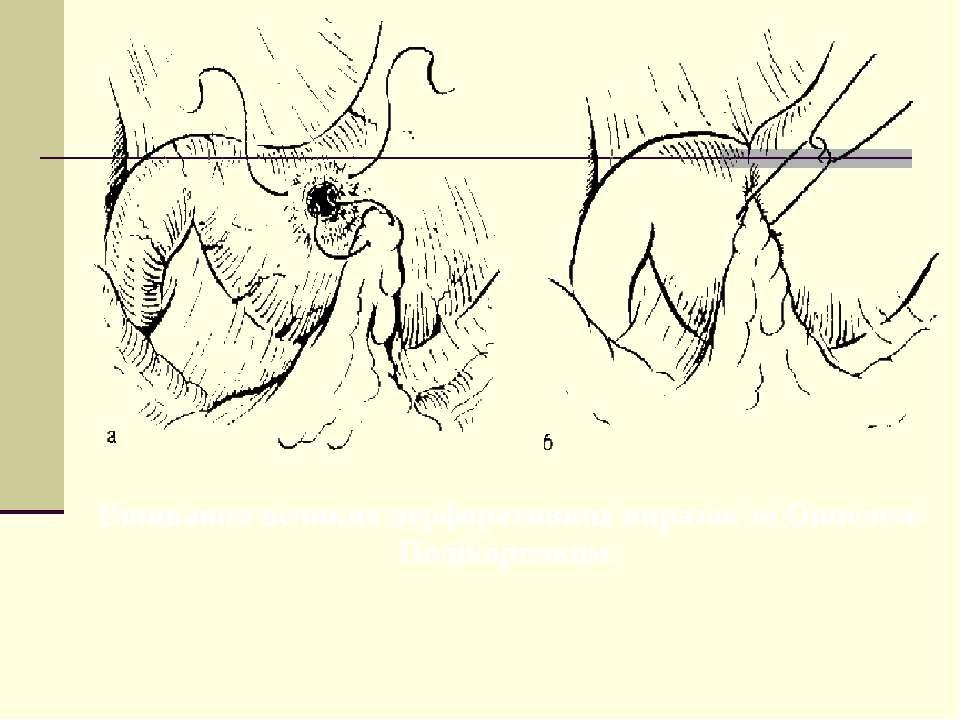 Вшивання великих перфоративних виразок за Оппелем-Полікарповим.